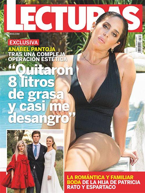 Anabel Pantoja tras una compleja operación estetica